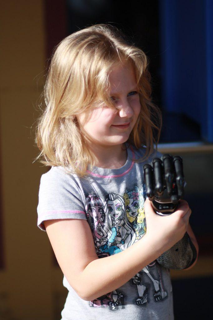 marleighprosthetichand